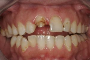 gbas-patient-before